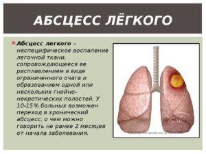 Влажный кашель возникает при абцессе легких