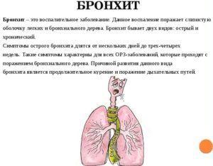 При бронхите рекомендуется принимать леденцы от кашля