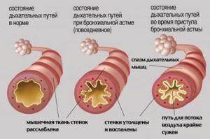 Дыхательные пути во время бронхоспазма
