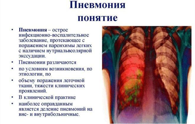 Пневмония часта вызывает сухой кашель