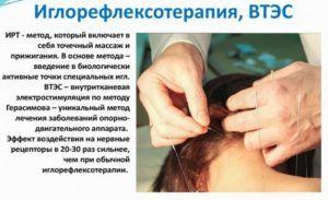При сухом кашле назначают иглорефлексотерапия