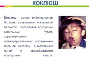Сильный кашель является признаком коклюша