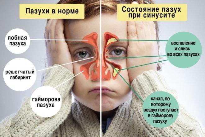 Синусит влечёт за собой сухой кашель