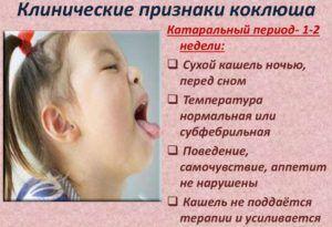 Сухой кашель у детей является признаком коклюша