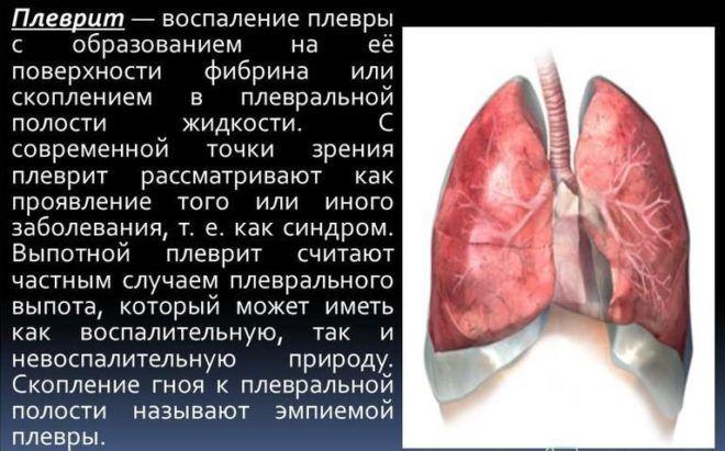 Заболевания плевры