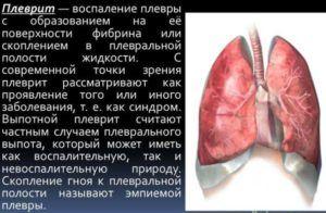 Осложнением пневмонии является плеврит