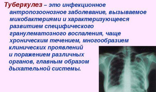 Белые мокроты возникают при начальной стадии туберкулеза