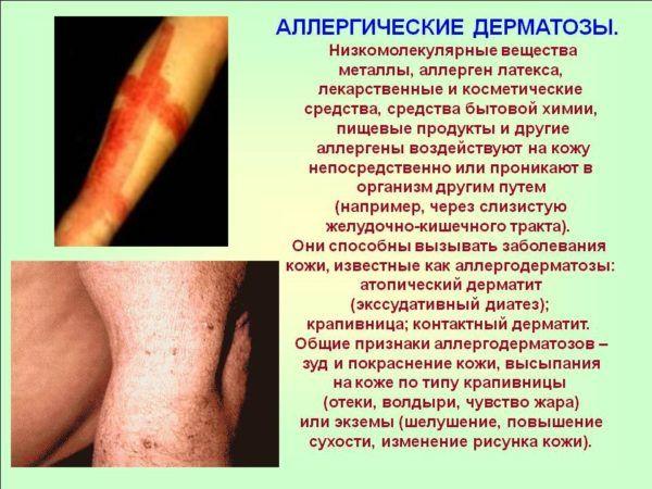 Аллергический дерматит является побочным эффектом при употреблении Коделака