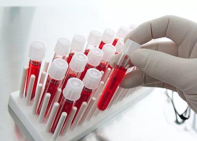 Анализ крови при пневмонии