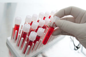 Анализ крови для диагностики сегментарной пневмонии