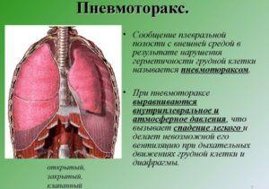Боль в легких может возникнуть при пневмотораксе