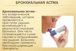 Влажный затяжной кашель может быть причиной бронхиальной астмы