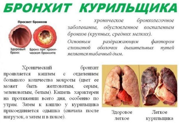 Бронхит курилшика