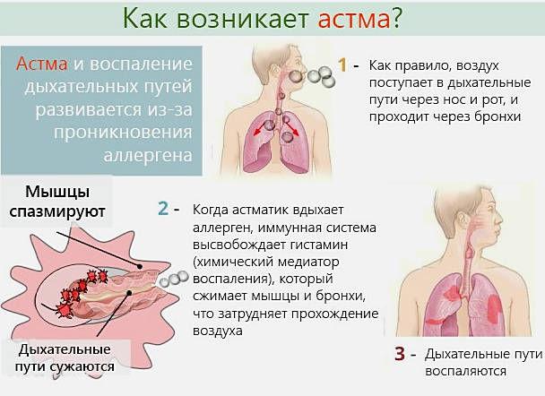 Длительный кашель при астме
