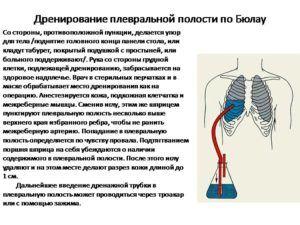 Дренирование грудной клетки