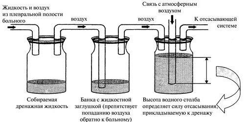 Дренирование плевральной полости