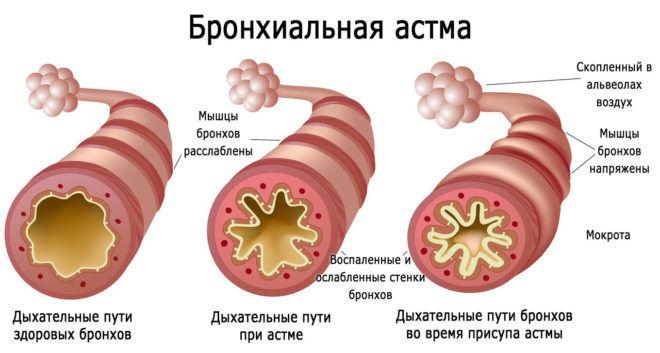 Грудной эликсир запрещен при бронхиальной астме