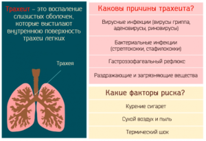 Грудной эликсир принимают при трахеите
