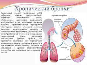 Хронический бронхит является последствием пневмонии