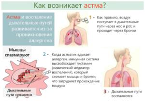 Коделак запрещен при астме