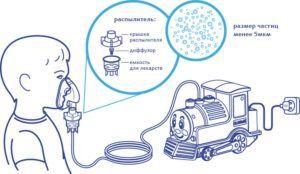 Компрессорный небулайзер для детей
