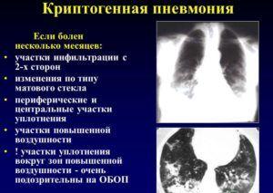 Криптогенная организующая пневмония