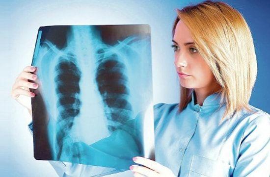 Лобулярная казеозная пневмония
