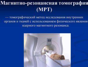 МРТ для диагностики пневмонии
