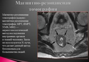 МРТ при тяжелой форме пневмонии
