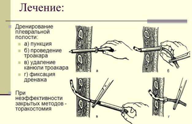 Метод Субботина дренирование