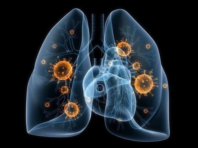 Микоплазма пневмония