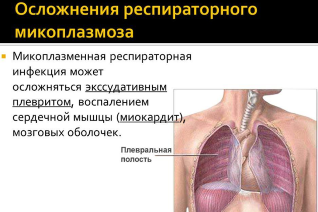 Микоплазменная респираторная