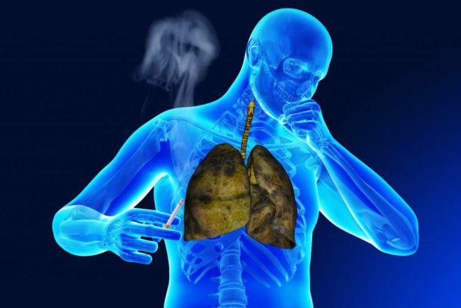 Можно ли курить после пневмонии легких