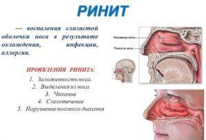 Небулайзер Омрон С24 применяется для лечения ринита