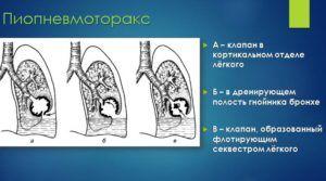 Осложнением пневмонии является пиопневмоторакс