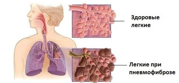 Пневмофиброз