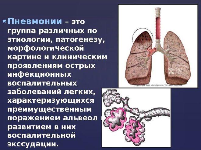 Жженный сахар принимается также при пневмонии