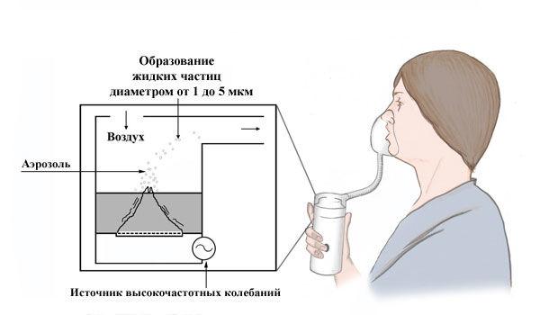 Правильное использование небулайзеров