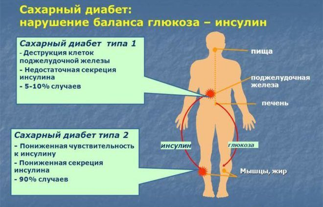 При сахарном диабете употребление жженого сахара запрещено