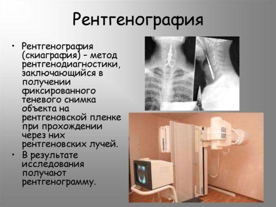 Рентгенография.jpg