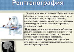 Для диагностики астматического бронхита применяют рентгенографию