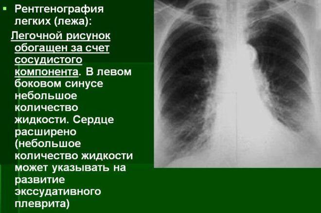 Рентгенография легких