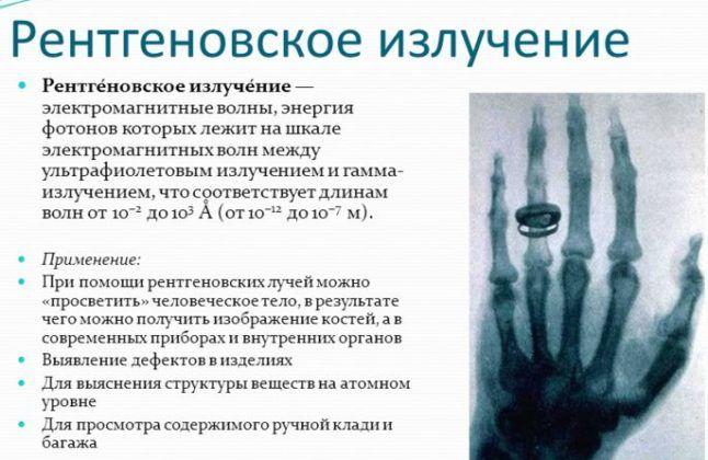 Рентгенографию разрешается делать раз в год