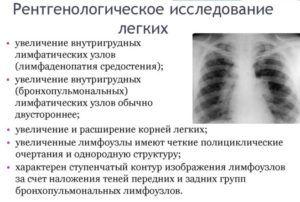 Рентгенологическое исследование легких для диагностики прикорневой пневмонии