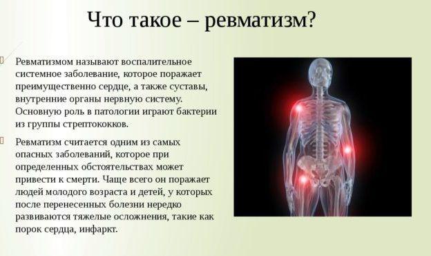 Анализ крови больного сухим плевритом Справка о кодировании от алкоголизма Филёвский Парк