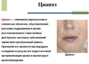 Симптомом острого аспирационного синдрома является цианоз