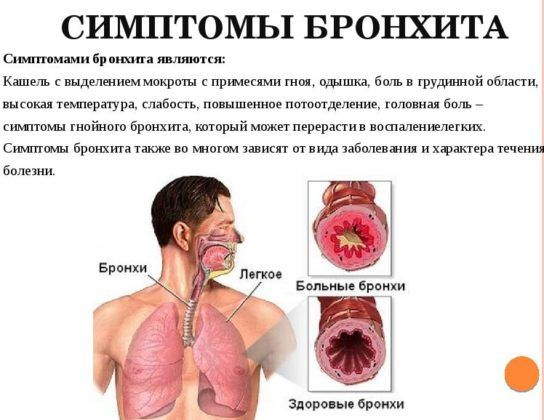 Симптомы