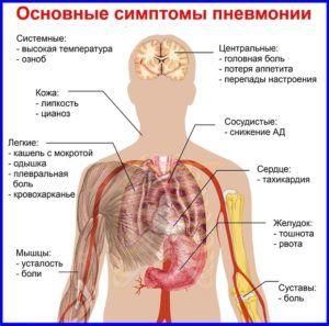 Симптомы которые означают появление пневмонии