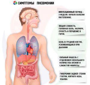 Симптомы острой формы пневмонии