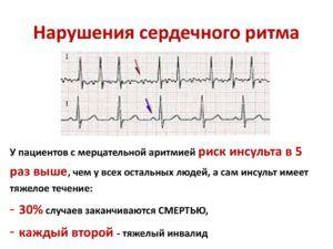 Сироп Кленбутерол запрещен при нарушении сердечного ритма